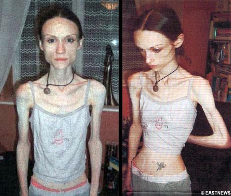 anorexia1mc3