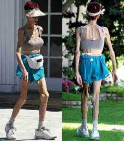 anorexia1mc31